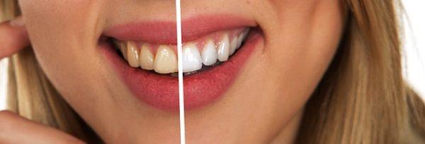 Jak mieć białe zęby? 5 sposobów na piękny uśmiech
